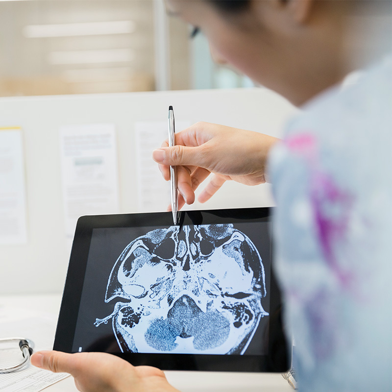 Neuro doctors reviewing brain scans